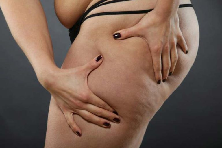 Benefits and Treatments of Liposuction, liposuction surgery before and after, liposuction surgery cost, liposuction surgery cost in india, liposuction surgery video, is liposuction worth it, is liposuction painful, long term side effects of liposuction, liposuction risks,