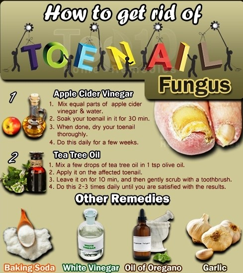 How to Get Rid of Toenail Fungus Fast and Effectively