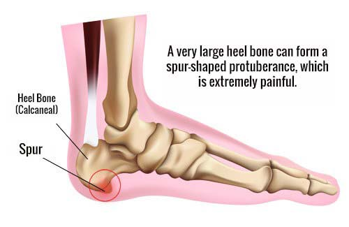What is Heel Spur?