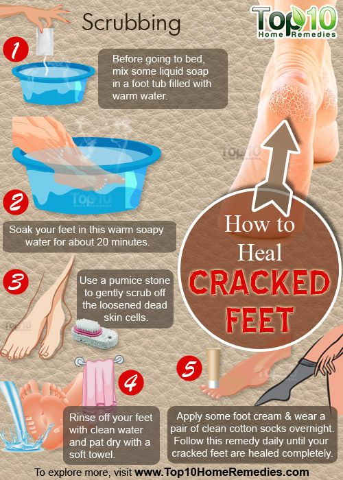 How to Keep Your Feet Healthy and Soft