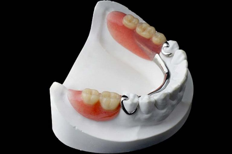 Difference Between Complete and Partial Dentures, types of partial dentures, partial dentures cost, partial dentures for back teeth, flexible partial dentures cost, types of dentures, pictures of partial dentures, dentures price, types of dentures photo,