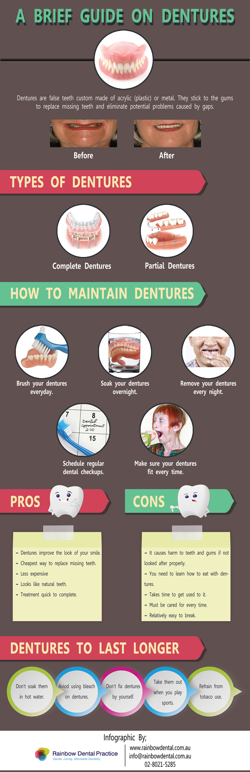 brief guide dentures