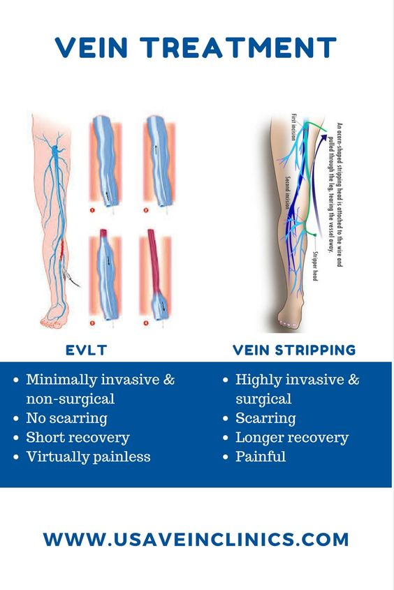 EVLT Vein Treatment