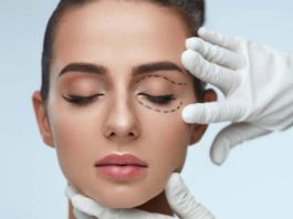 The Pros and Cons Of Cosmetic Surgery For Eye Bag Lift, lower blepharoplasty side effects, blepharoplasty pros and cons, eyelid surgery cost, eyelid surgery recovery time photos, cosmetic surgery for eyes, eyelid ptosis surgery pros and cons, recovery from plastic surgery on eyes, blepharoplasty gone wrong photos, eye bag surgery cost, eye bag removal non surgical, removing eye bags without surgery, eye bag surgery before and after, laser eye bag surgery cost, laser under eye bag removal, eye bag treatment before and after, how much does laser eye bag removal cost,