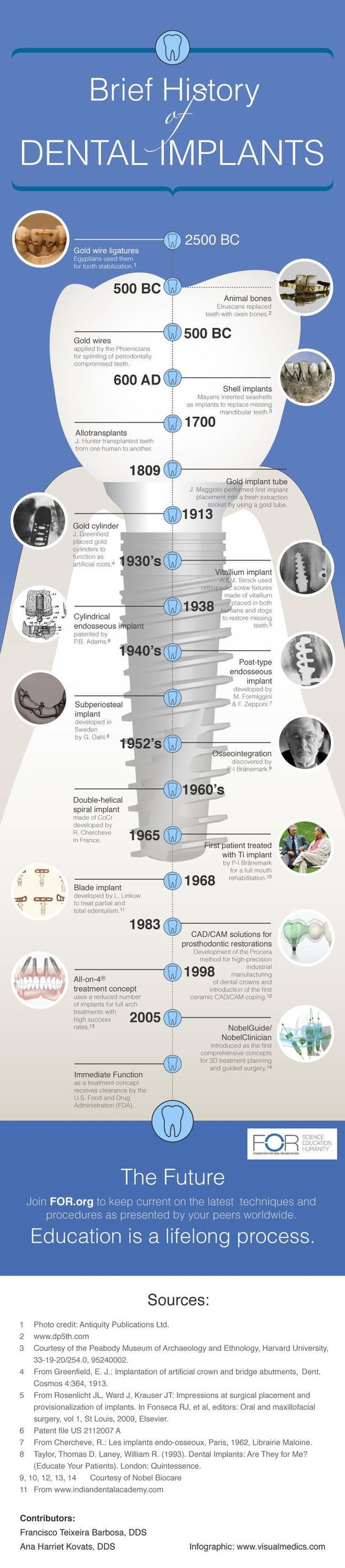 brief history of dental implants