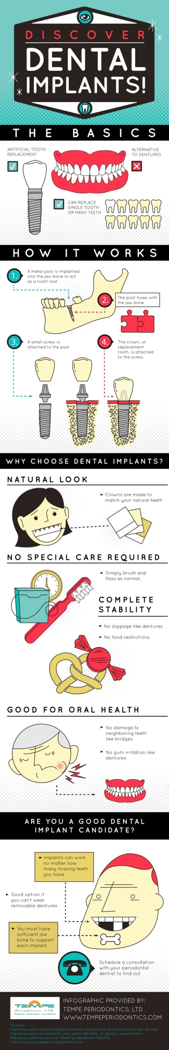 discover dental implants
