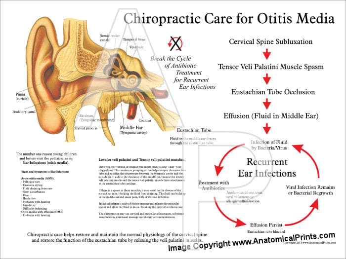 chiropractic care for Otitis media