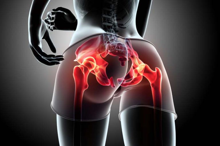 How to avoid hips pain after Exercise?, best cardio for hip pain, hip pain exercises to avoid, lower back and hip pain relief, hip arthritis pain relief, hip flexor pain, hip pain after squats and deadlifts, is walking good exercise for hip bursitis, outside hip pain after running,
