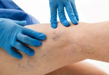 Defeating The Web With Varicose Vein Treatment, varicose vein treatment cost, varicose veins home treatment, best treatment for varicose veins, varicose vein treatment near me, how to treat varicose veins with apple cider vinegar, varicose veins treatment cream, varicose veins pain relief, what is good for varicose veins?,