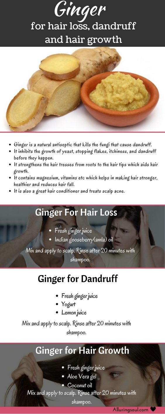 Ginger for Hair Loss Dandruff and Hair Growth
