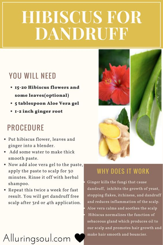 Hibiscus for Dandruff