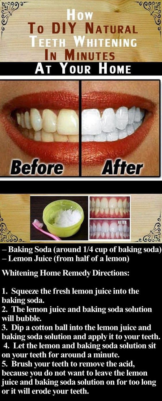 Top 10 Ways You Can Naturally White Your Teeth At Home Women