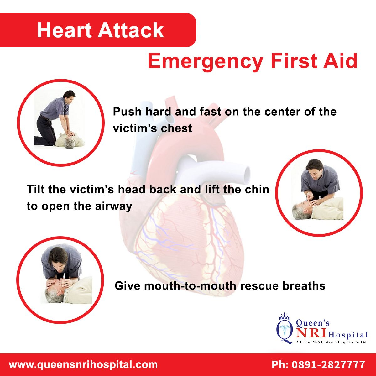 Emergency First Aid for Heart attack