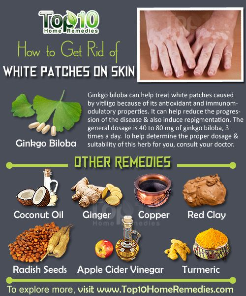Get rid of white patches on skin