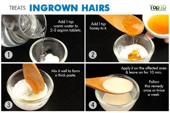 Treat ingrown hairs