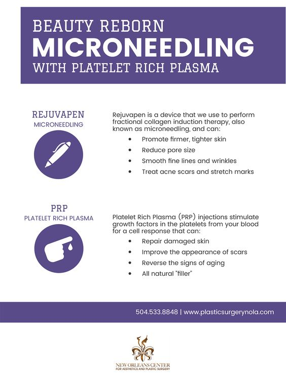Beauty reborn MicroNeedling with platelet rich plasma