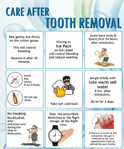 Care after tooth removal