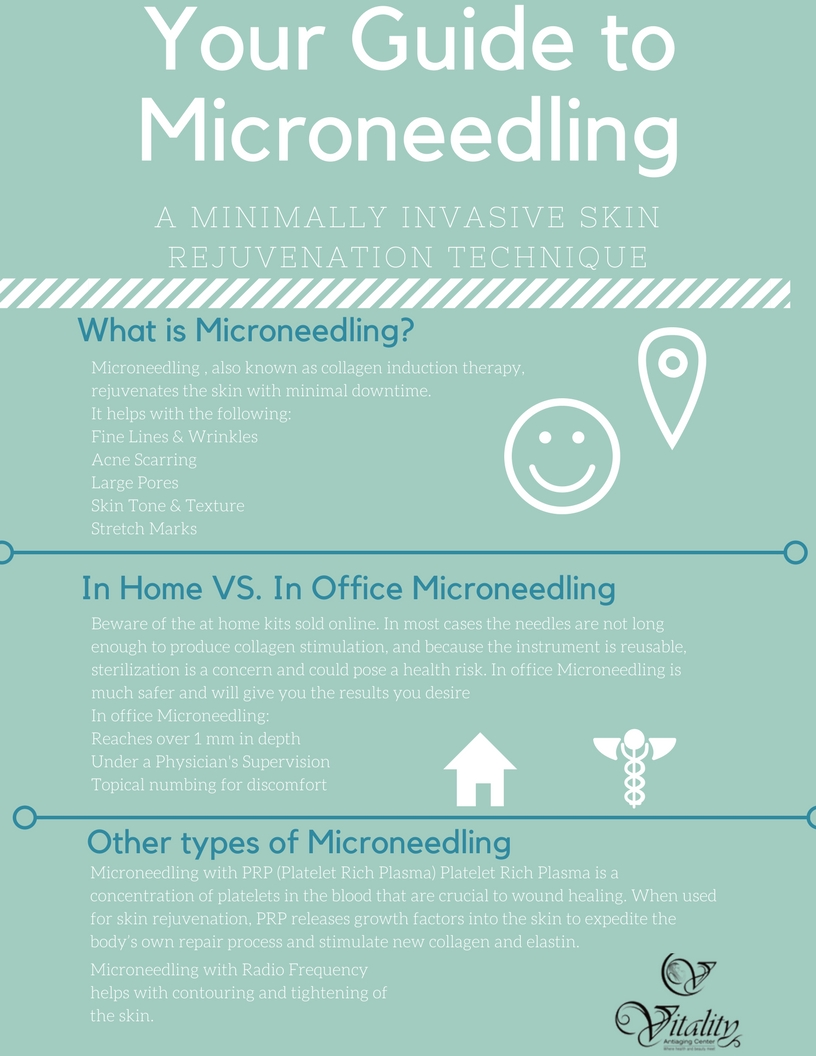 Guide to MicroNeedling