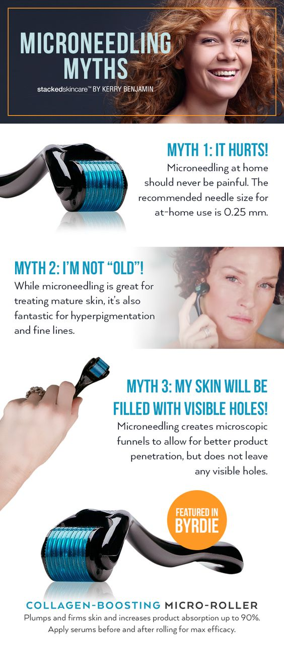 MicroNeedling myths