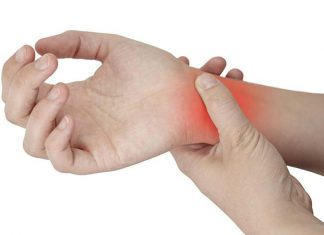 What Women Should Know About Carpal Tunnel Syndrome