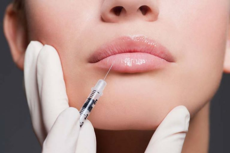 Lip Injections: Big Results with Little Commitment