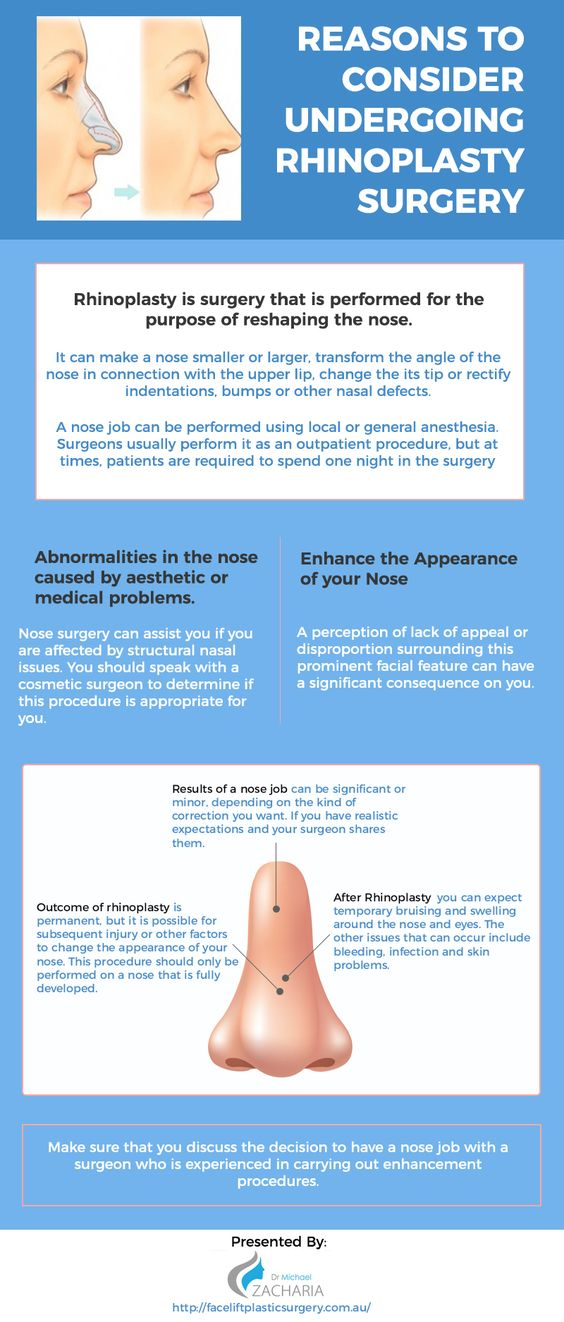 Reasons to consider undergoing Rhinoplasty Surgery