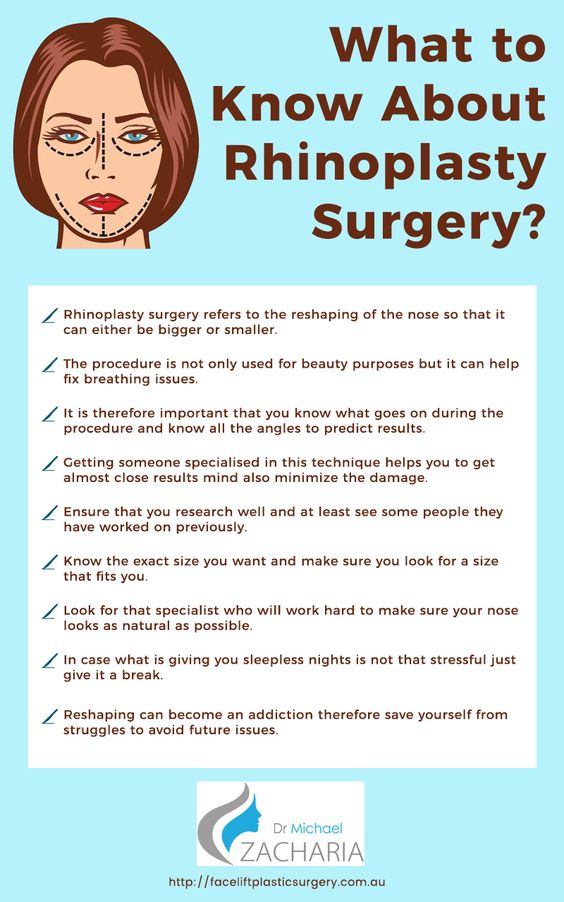 What to know about Rhinoplasty Surgery