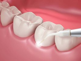 How does laser treatment work in dentistry?