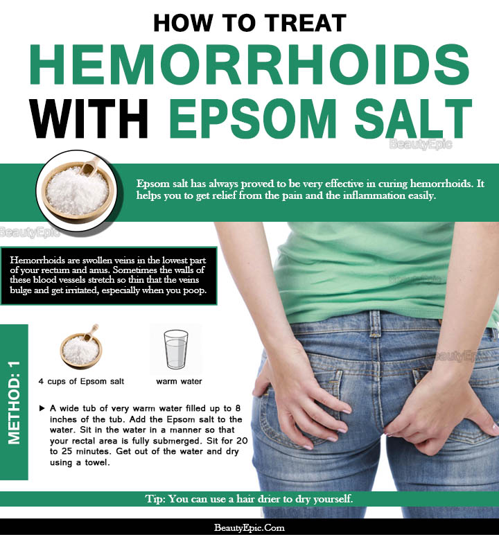How to treat hemorrhoids with Epsom Salt