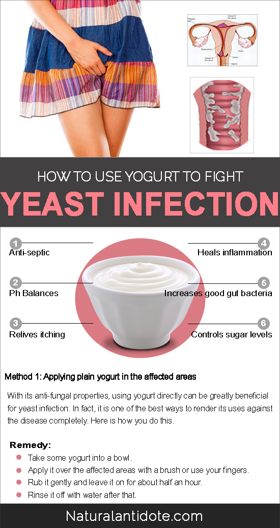 How to Use Yogurt to Fight Yeast Infection
