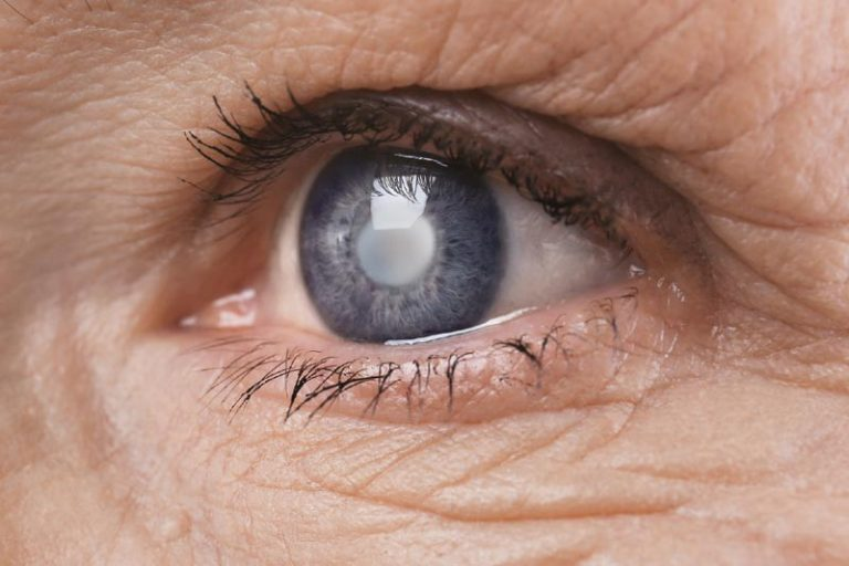 5 Questions That A Patient Should Ask Before A Cataract Surgery
