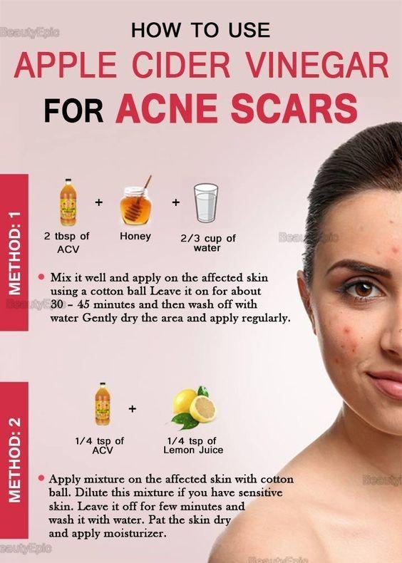 Apple cider Vinegar for Acne Scars