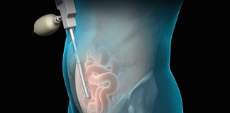 Things to Do Before Hernia Surgery