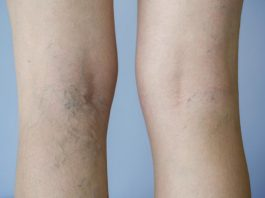 Vein Doc Ali Meslemani - Understanding Options for Varicose Vein Treatment