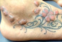 Common Tattoo Side Effects To Check Out