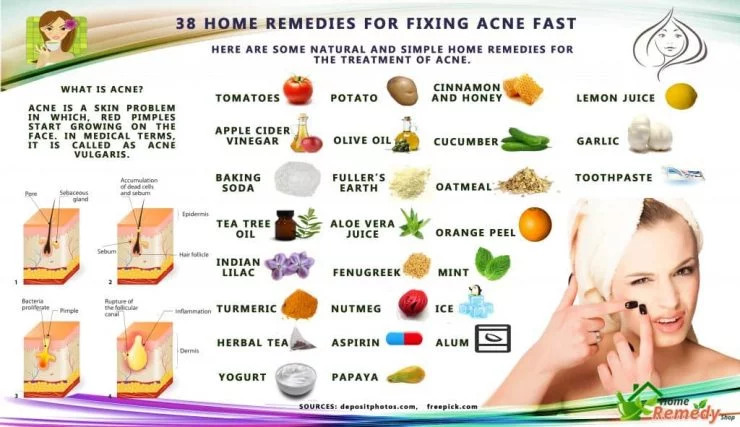 Home Remedies to fix Acne naturally