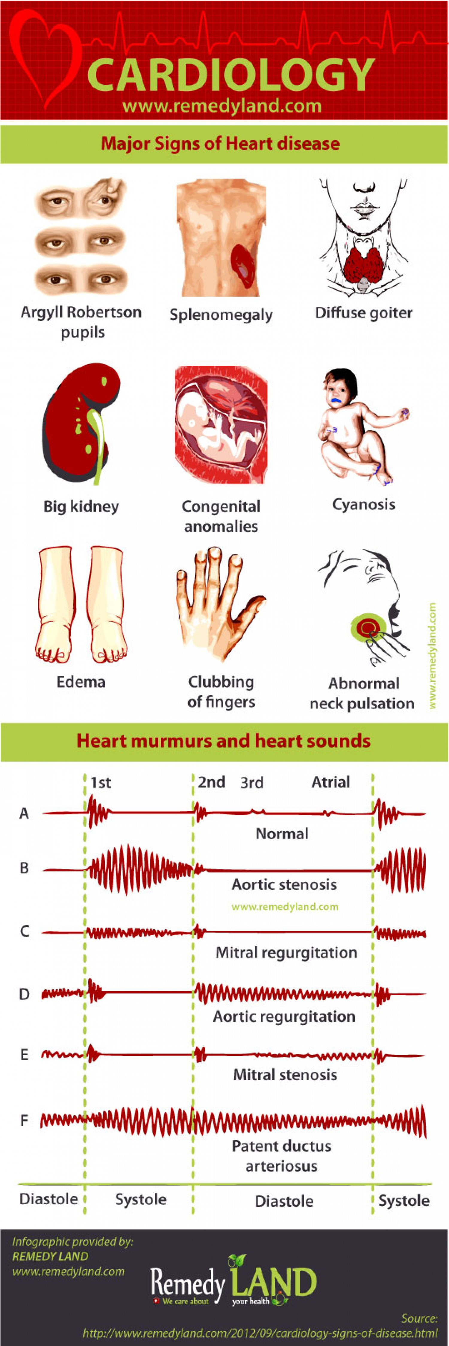 Major Signs of Heart Disease