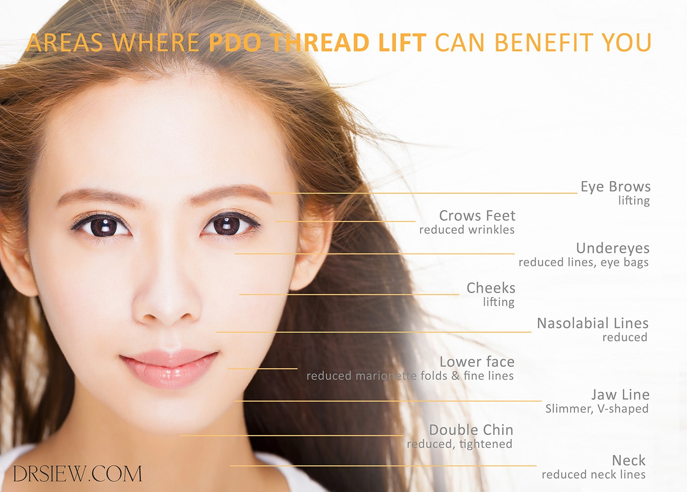 Areas where PDO Thread lift can benefit