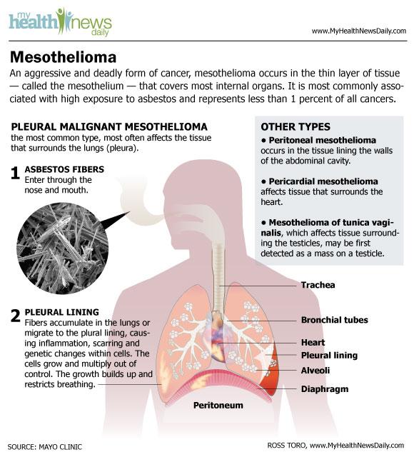 Mesothelioma