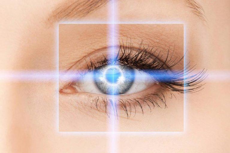 The Basics of LASIK Eye Surgery