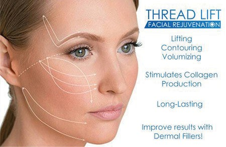Thread lift Facial Rejuvenation