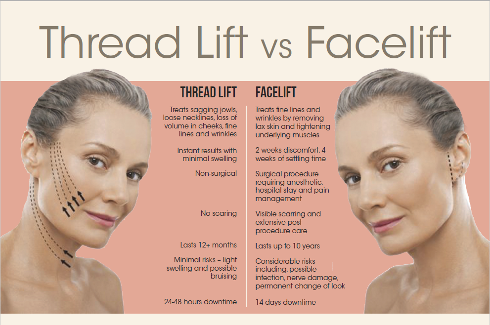 Thread lift vs Face lift