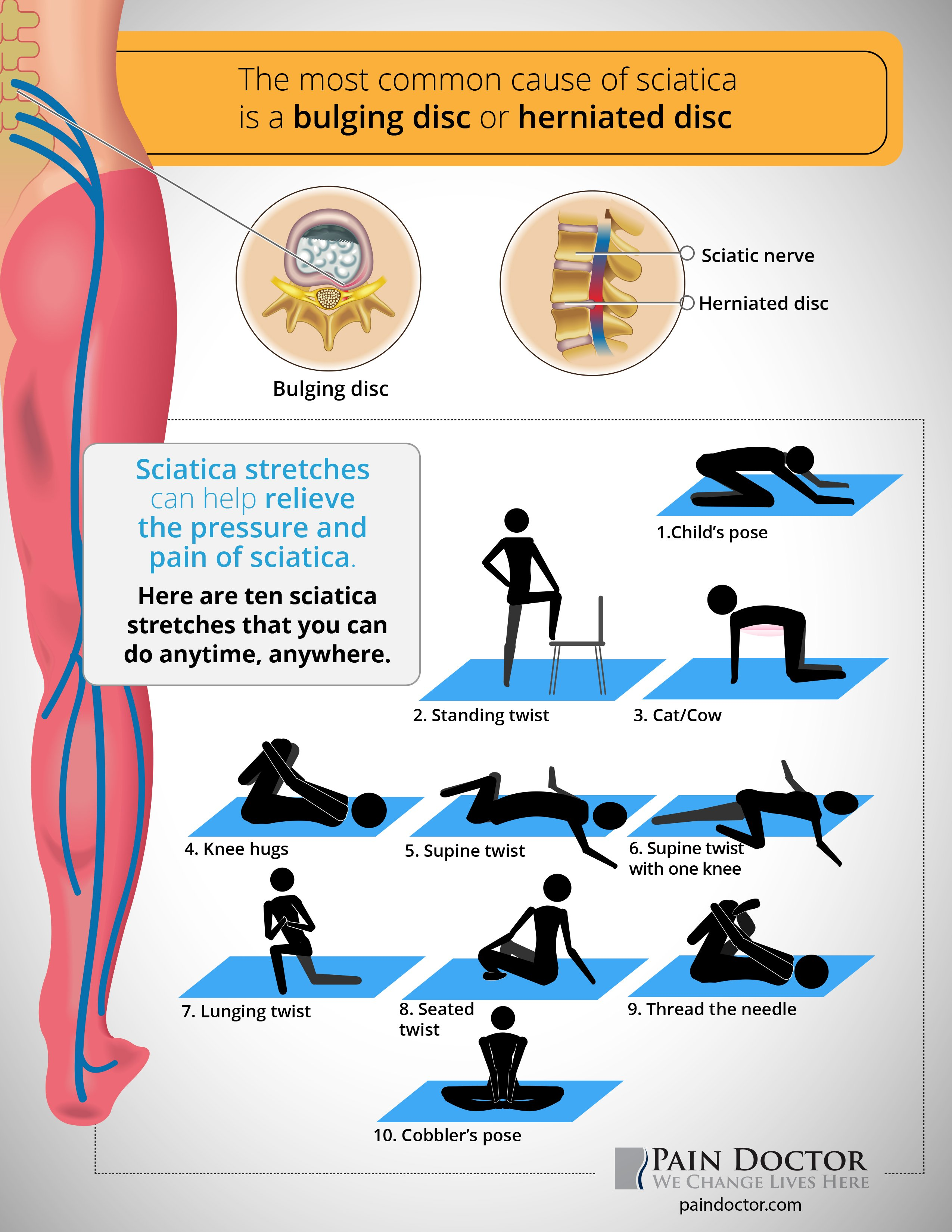 Sciatica stretches can help relieve the pressure and pain