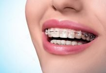 6 Reasons Why Invisalign Is The Best Option For Teens