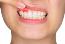 Can Gingivitis Kill You? How Poor Oral Hygiene Can Affect Your Overall Health