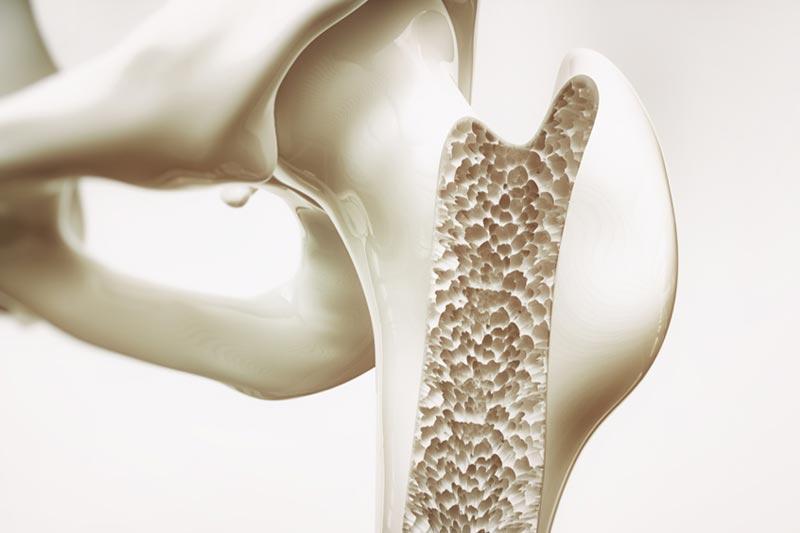 Bone Loss