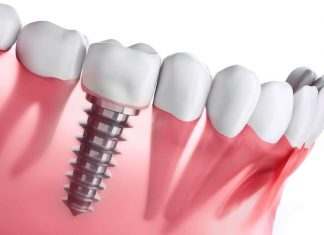 Dental Implant Procedure Explained in 3 Simple Steps