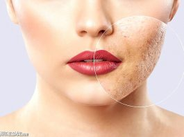 All About Acne Scar Removal in Singapore