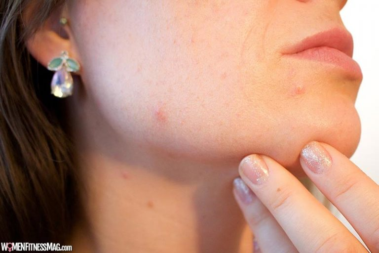Surprising Benefits Of Using Pimple Patches For Your Skin