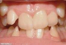 The Causes, Symptoms and Treatment of Crowded Teeth